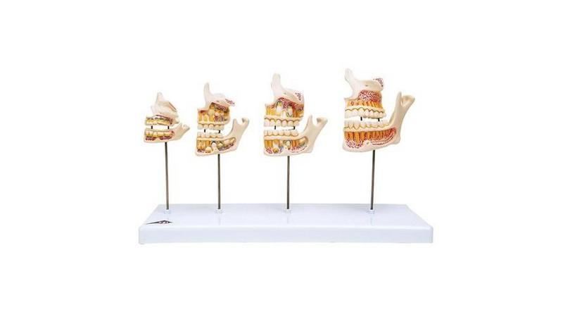 Dentition Development