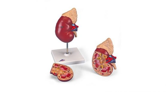 Kidney with Adrenal Gland. 2 Part