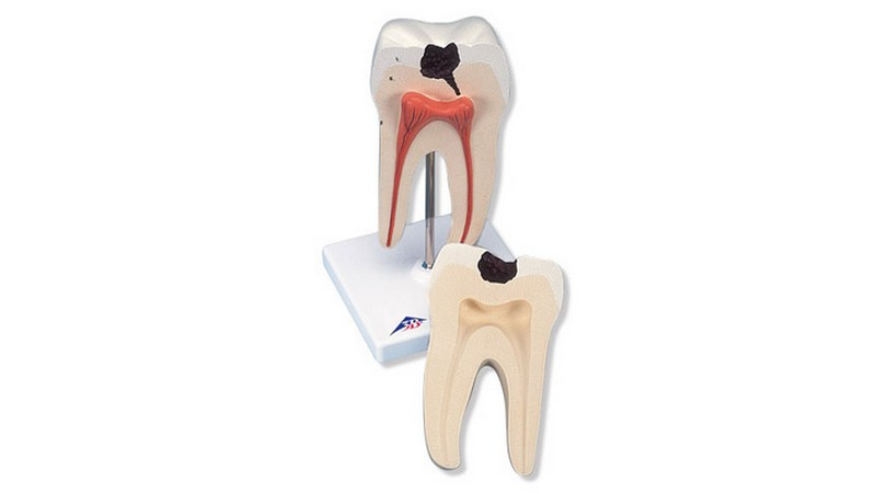 Lower Twin-Root Molar Showing Cavities, 2 Part