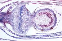 Prepared Microscope Slide. Sphagnum