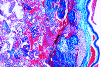 Prepared Microscope Slide. Placenta