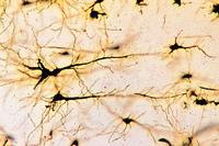 Prepared Microscope Slide. Cerebral cortex