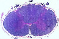 Spinal cord, human, t.s. of cervical region