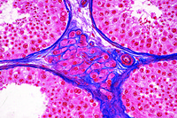 Leydig's cells in testis of mouse, t.s.