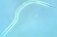 Strongyloides, filariform larvae w.m. (infective larvae) *