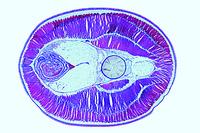Petromyzon, region of abdomen t.s.