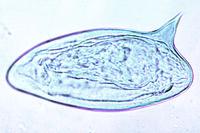 Schistosoma mansoni, ova in faeces w.m.