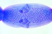 Dipylidium caninum, mature proglottids w.m.