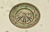 Hymenolepis nana, ova from faeces w.m.