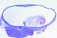 Cysticercus cellulosae, bladderworm of Taenia solium, section through pork muscle with parasites in situ