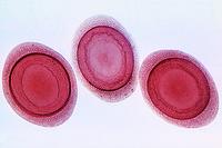 Plumatella, isolated statoblasts w.m.