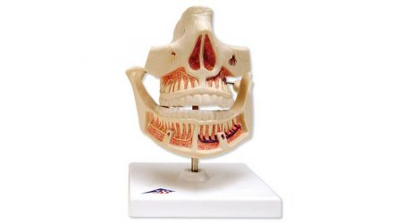 Milk Dentures