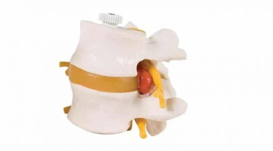 2 Lumbar Vertebrae with prolapsed disc, flexibly mounted