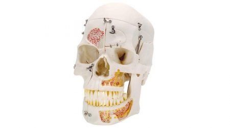 Deluxe Human Demonstration Dental Skull Model, 10 part