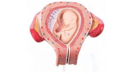 Fetus model, 3 month