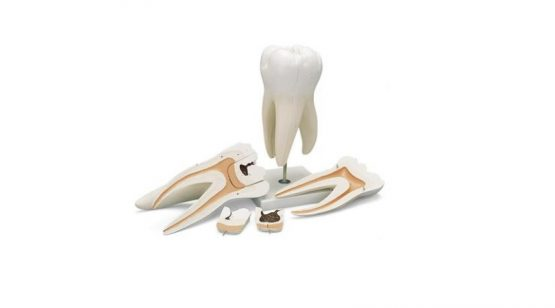 Giant Molar with Dental Cavities, 15 times life size, 5 part