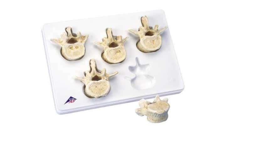 Set of 5 Lumbar Vertebrae   Instruments Direct
