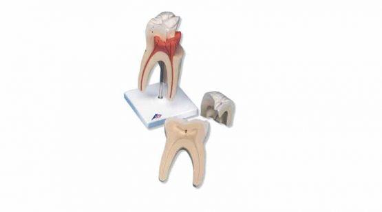 Upper Triple-Root Molar, 3 part